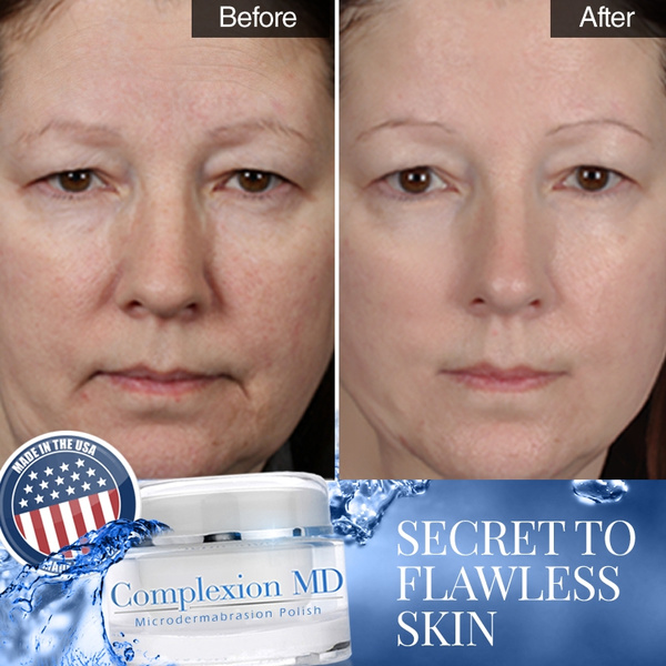 Complexion MD Microdermabrasion Polish