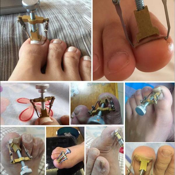 Wish   Professional Ingrown toenail Toe fixer recover Correction ...