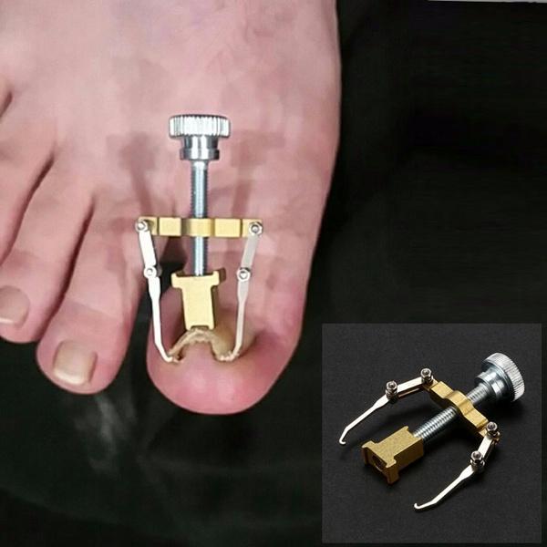 Wish | Embedded Toenail Ingrown Toe Nail Fixer Pedicure Toenail ...