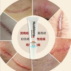 nuobisong, stretch, spots, removescar