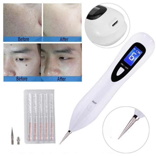 freckle removal, spotremover, Health & Beauty, Pen