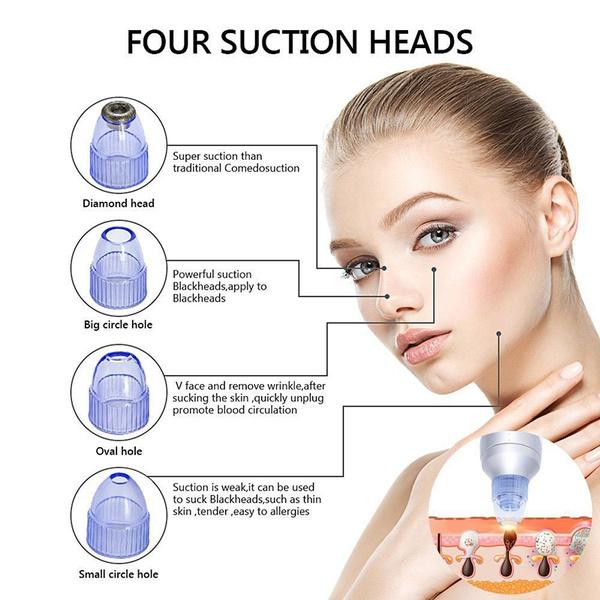 Cystic Acne Diagram Imagenesmy