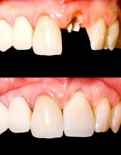 denture, Health & Beauty, tooth, faketooth