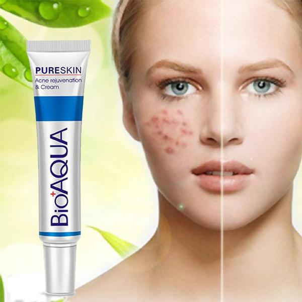 Bioaqua Acne Treatment Cream Scar Removal Oily Skin Acne Spots