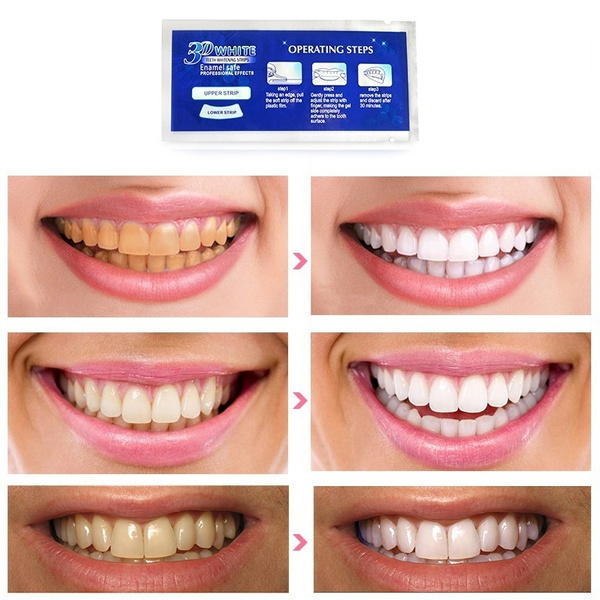 Crest 3d White Gel Teeth Whitening Strips Luxe Professional