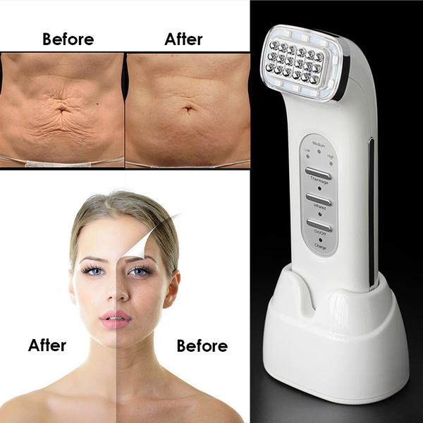 RF Radio Frequency Facial Thermage Facial Neck Wrinkle Remover Face Lifting  Skin Tightening RF Beauty Massager Real Remove Wrinkle Dot Beauty Device