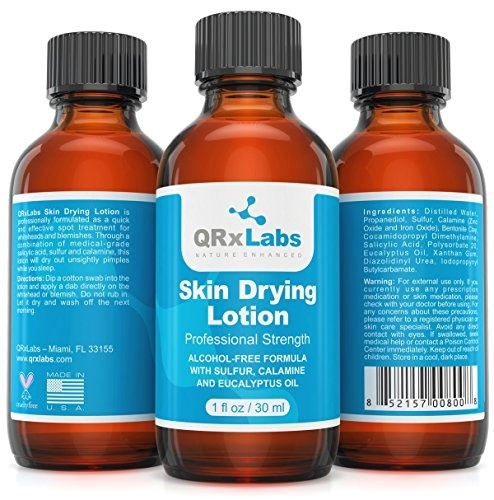 Drying Lotion - Overnight Acne & Whitehead Spot Treatment Fights Blemishes,  Pimples & Breakouts for a Clear Skin Fast Acting Formula with Sulfur &