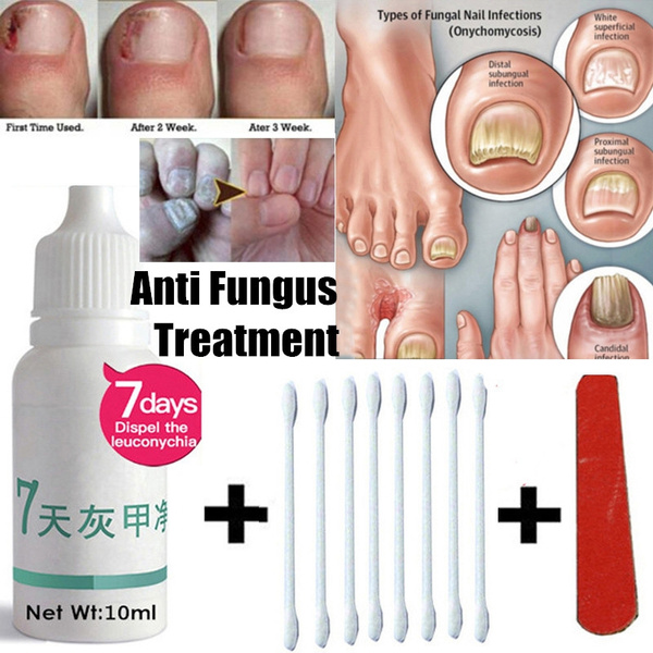 10ml Fungus Removal Infection Feet Care Anti Fungal Maximum Strength ...