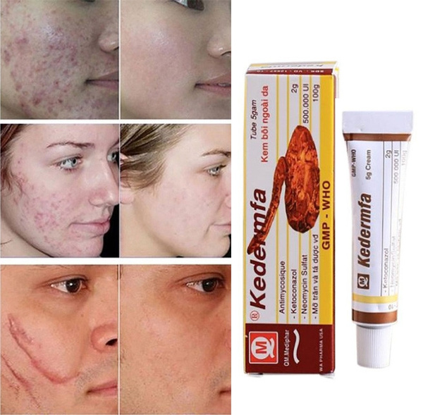 Snake Oil Remove Scar Cream Skin Care Pigmentation Corrector Face