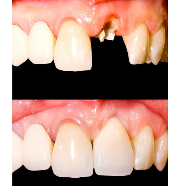Temporary Tooth Kit Natural Veneer Replace Missing Teeth Cover DIY Safe Easy