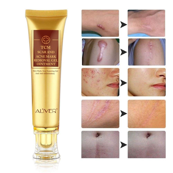 Tcm Scar Cream Acne Scar Removal Cream Face Skin Repair Cream