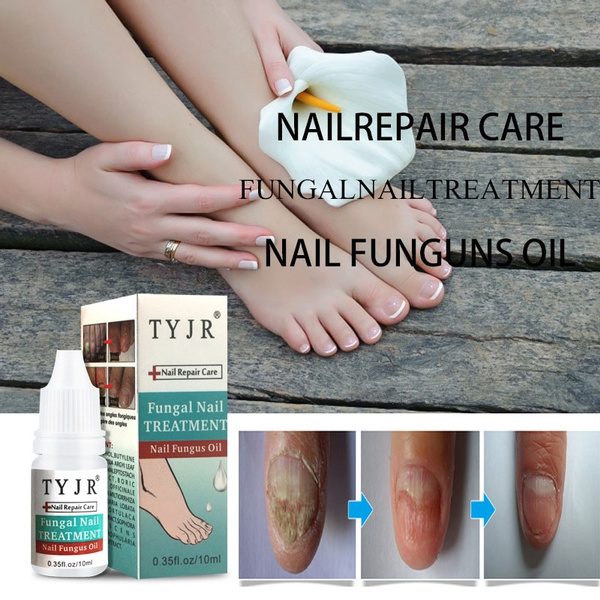 10ml Chinese Herbs Armor Nail Fungus Onychomycosis Removal Treatment ...