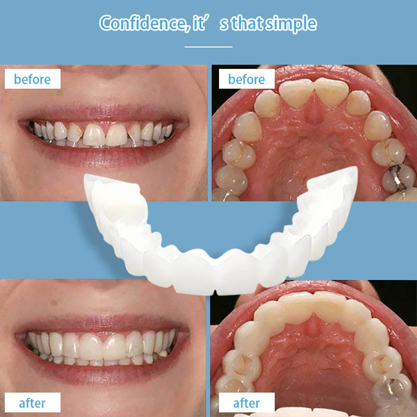 2PCS Fake Tooth Cover Perfect Smile For Correction of Teeth For Bad Teeth  Perfect Smile Veneers Teeth Whitening Silicone Simulation