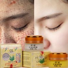 freckles, fadedarkspot, Beauty, creammelasma