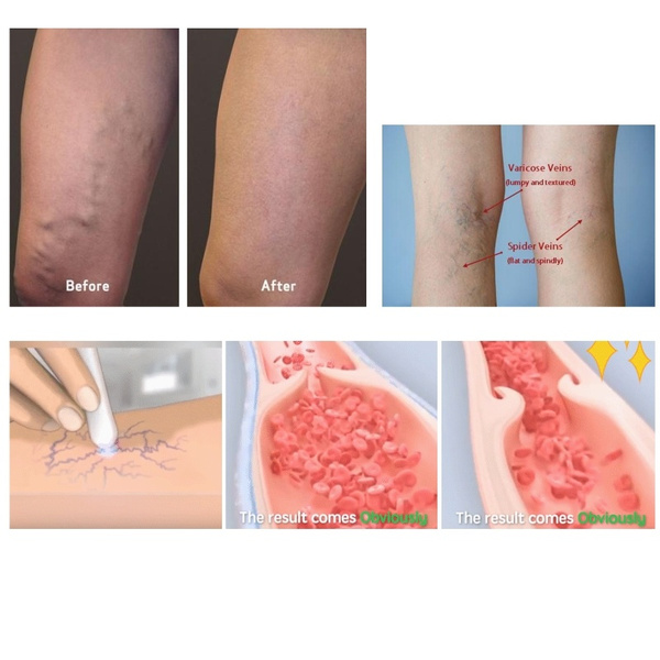 Wish Medical Blue Light Therapy Varicose Veins Spider Veins