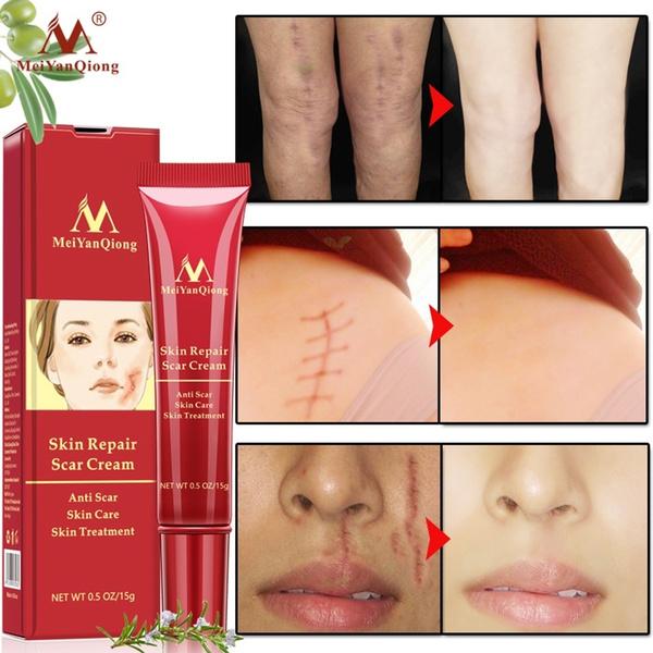 Facial Body Beauty Supply Improve Cells Regeneration Scratches