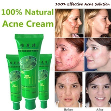 Beauty, Face, Skincare, oil control acne