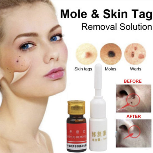 New Mole Skin Tag Removal Solution 100 Remover Skin Tags