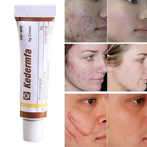 Snake Oil Remove Scar Cream Skin Care Pigmentation Concealer Face
