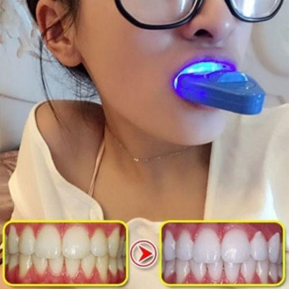 White Light Teeth Whitening Tooth Whitener Care Healthy Dental