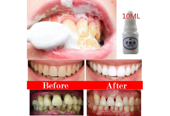Wish Polidor Dental Para Clareamento