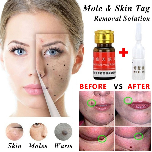 Face Care Oil Removal Solution Professional Mole Removal Cream Dark Spotson  Face Painless Freckle Removal Cream Blackhead Remover