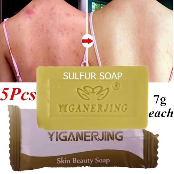 5pcs Sulfur Sulphur Soap Body Clearance Acne Psoriasis Seborrhea Eczema  Anti Fungus Bath Whitening Shampoo Skin Repair