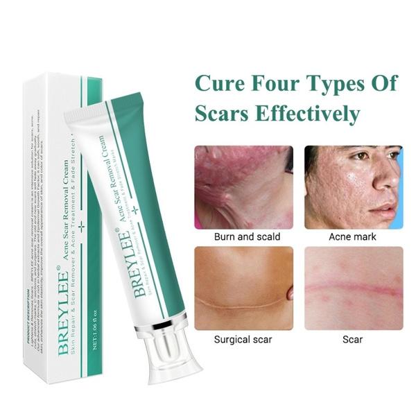 Breylee Scar Cream Desalination Repair Scar 30g Acne Scar Removal
