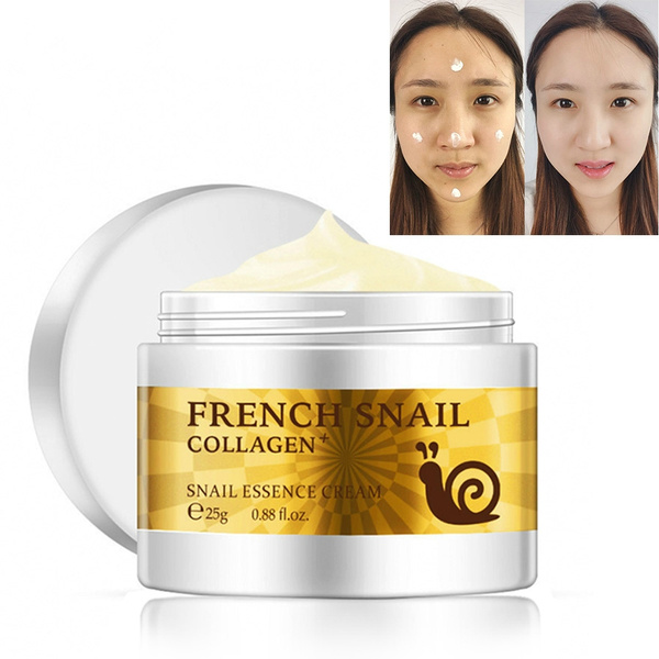 Snail Face Cream Acne Scar Removal Cream for skin care bleaching ...