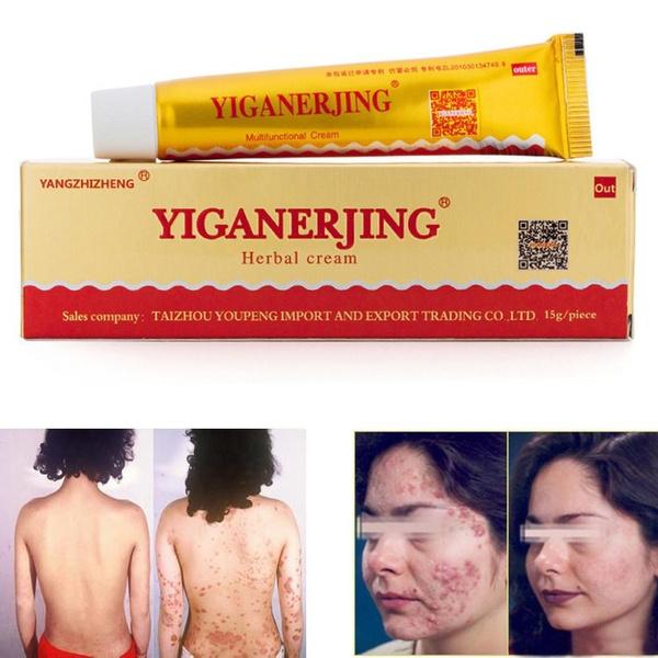 Body, acneitch, chineseherbalmedicinecream, Skincare