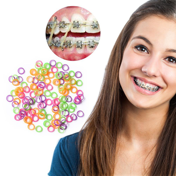 100pcs New Dental Orthodontic Rubber Bands Latex Braces