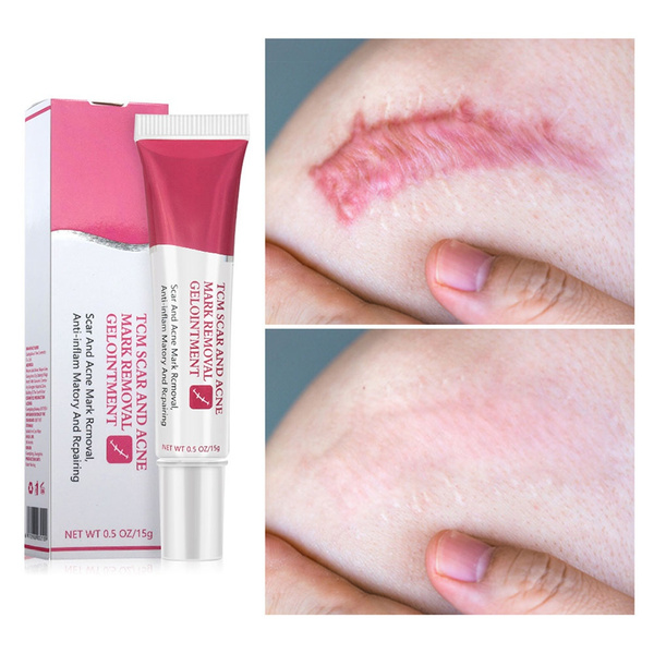 Scar Removal Cream Skin Repair Cream Treatment For Facebody Scar Acne Spots Stretch Mark Cream Old And New Scars And