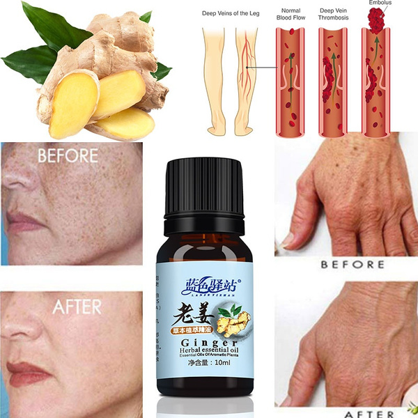 Natural Plant Therapy Lymphatic Drainage Ginger Essential Oil Shower Oils  Relaxing Moisturizing Massage Skin Care