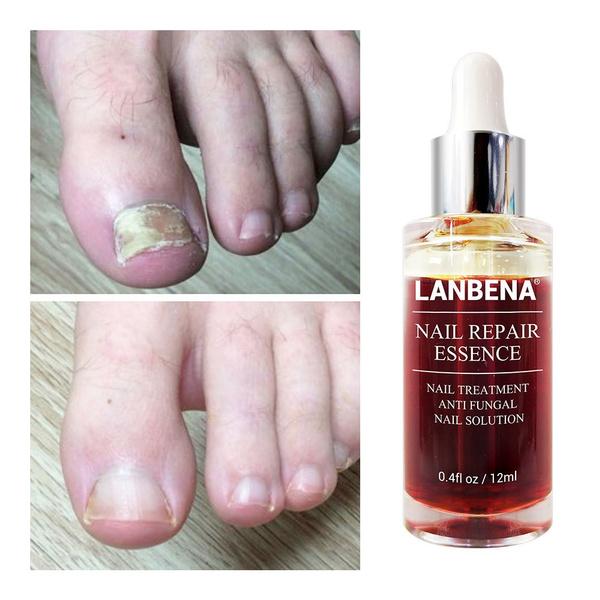 Beauty, toenail, Nails, feetcare