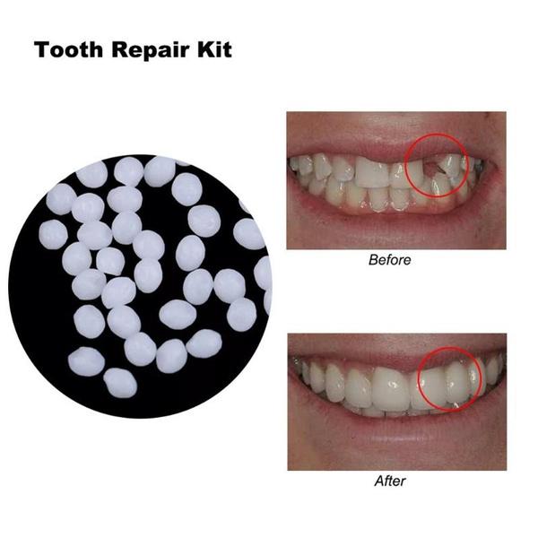 missingteethreplacement, Beauty, denture, Tool