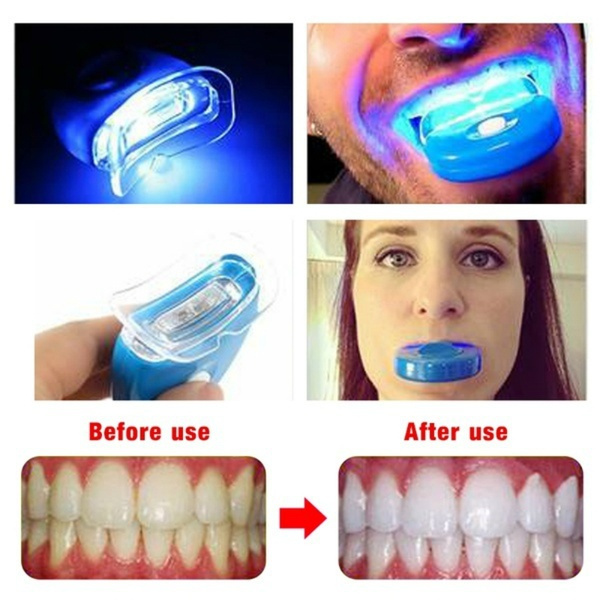 2 Pcs Dental Teeth Whitening Blue Light Accelerated Catalytic Whitening Lamp Oral Care Wish