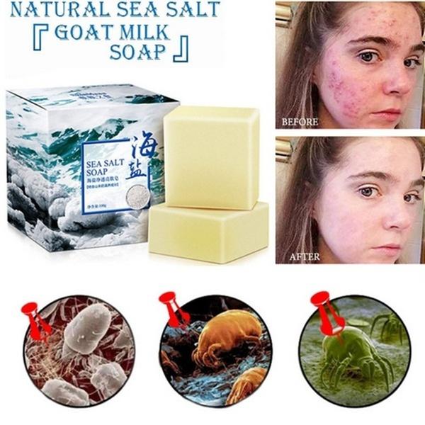 seasaltsoap, milksoap, acaruskilling, Milk
