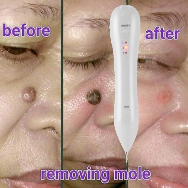 Face Skin Care Pen Spot Pores Skin Tag Removal Freckle Remover
