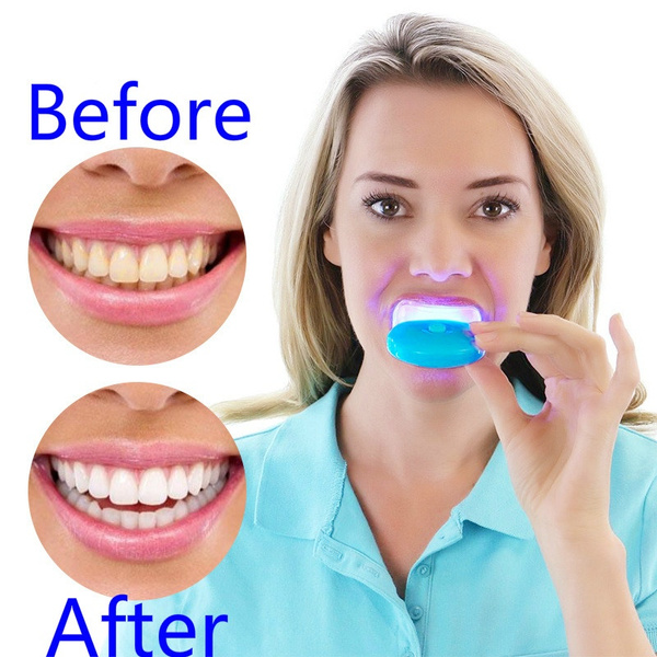 Hot White Blue Light Teeth Whitener Care Lamp Blue Light Accelerated Catalytic Whitening Lamp Oral Care Instrument Wish
