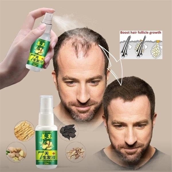 tonic, alopecia, ginger, hair