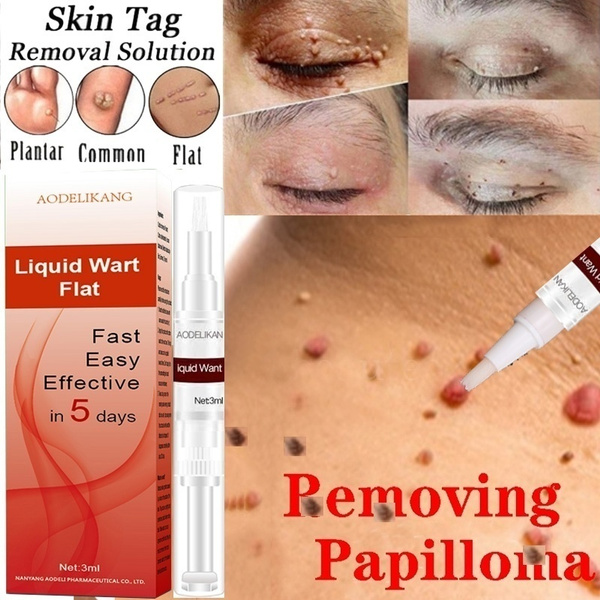 Skin Tag Remover Pen 12 Hours Remover Skin Tag Mole Genital Wart