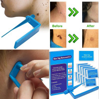 Tagband Skin Tag Removal Device For Medium To Large Skin Tags Wish
