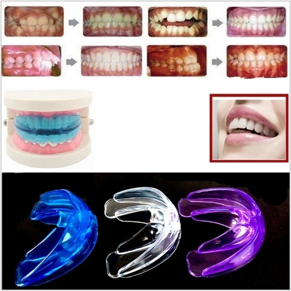 straightteethsystem, maintainer, Braces, Health & Beauty