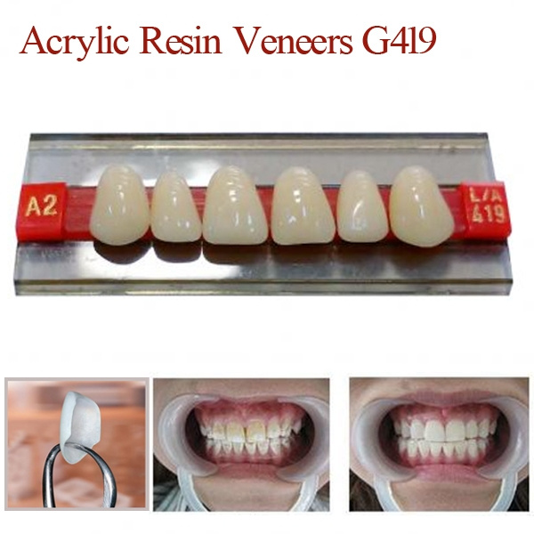 resindenture, veneer tech, dentalcare, dentaltreatment