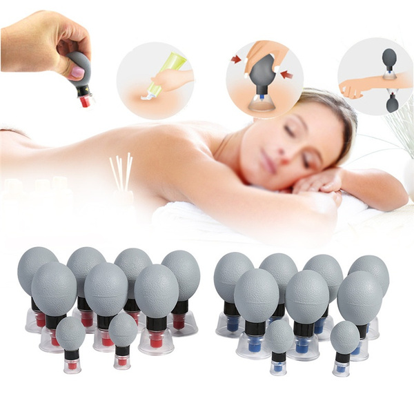 acupunctureacupressure, Cup, suctioncupping, magnetictherapy