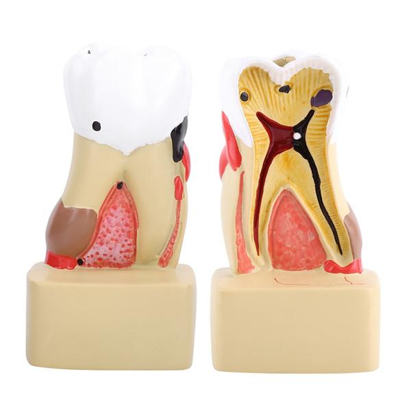 teethtoothmodelcarie, dentalcare, toothtool, dental