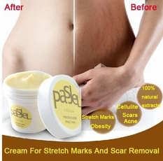 Body, repair, stretch, removal