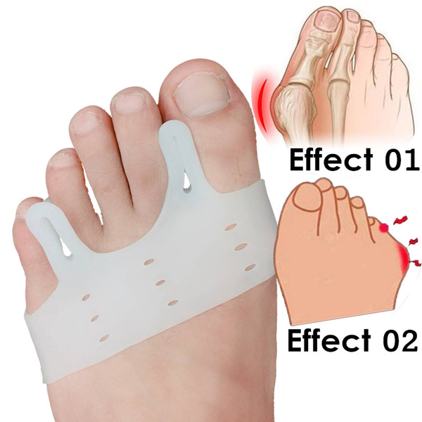 toeseparator, Foot Care, valguscorrection, bunioncorrector