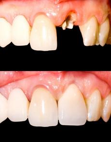 otheroralcare, diy, teeth, Health & Beauty