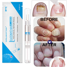 nailsartamptool, Beauty, toenail, onychomycosi